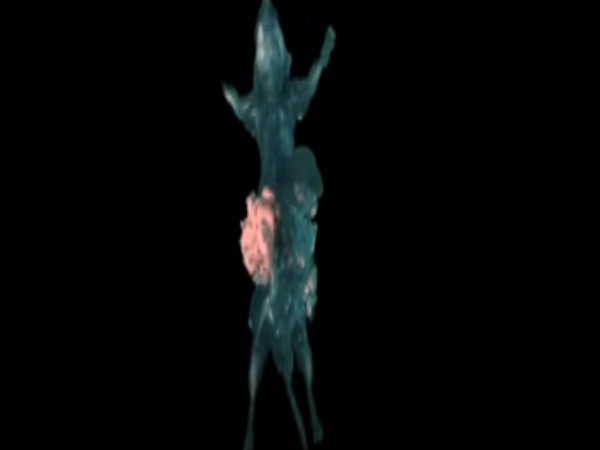 Spreading cancer caught on film